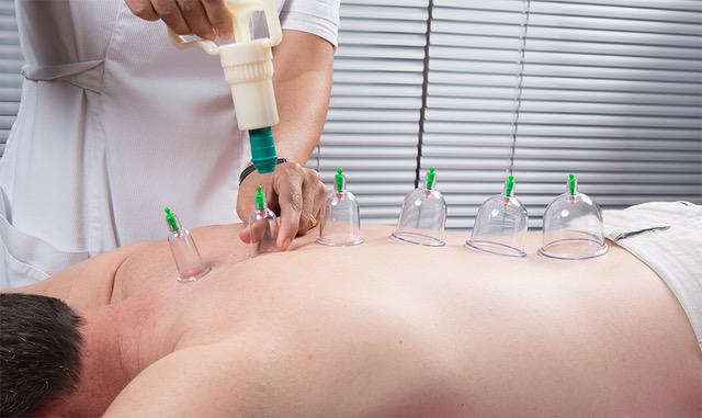 Cupping Massage Image